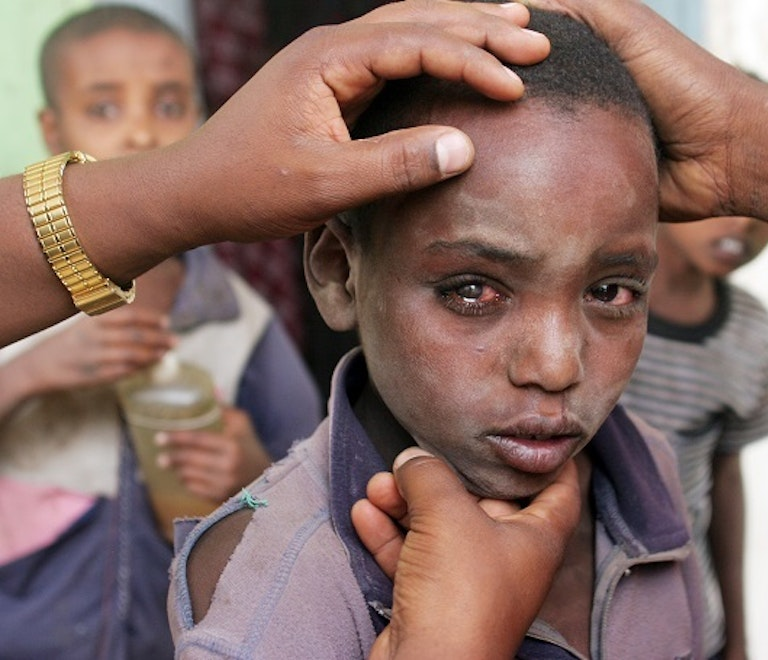 Bonsa Lalenda, an Ethiopian child with a cataract, is examined