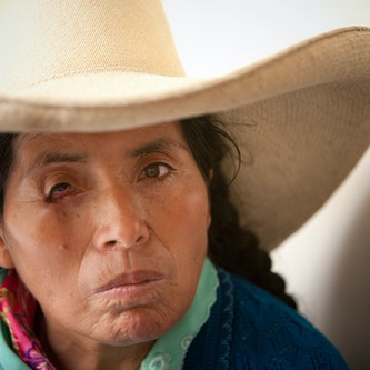 A Peruvian patient in traditional dress with diabetic retinopathy
