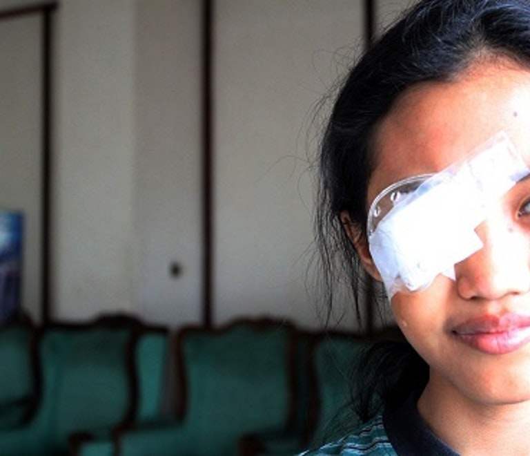 11-year old patient Milania recovering from treatment, looking into camera with eye patch on right eye