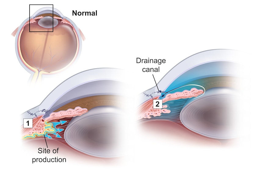 Glaucoma: Diagram of a normal eye with no pressure build up