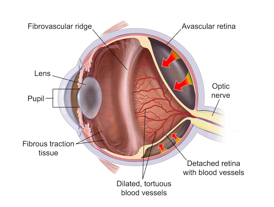 Retinopathy of Prematurity Diagram