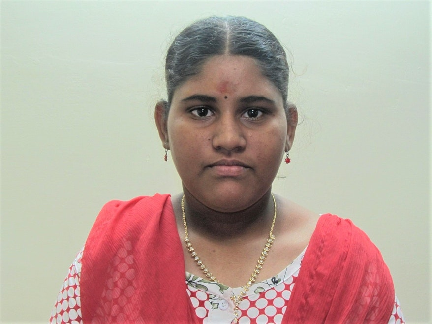 After: The Orbis patient is pictured with straight eyes following strabismus surgery