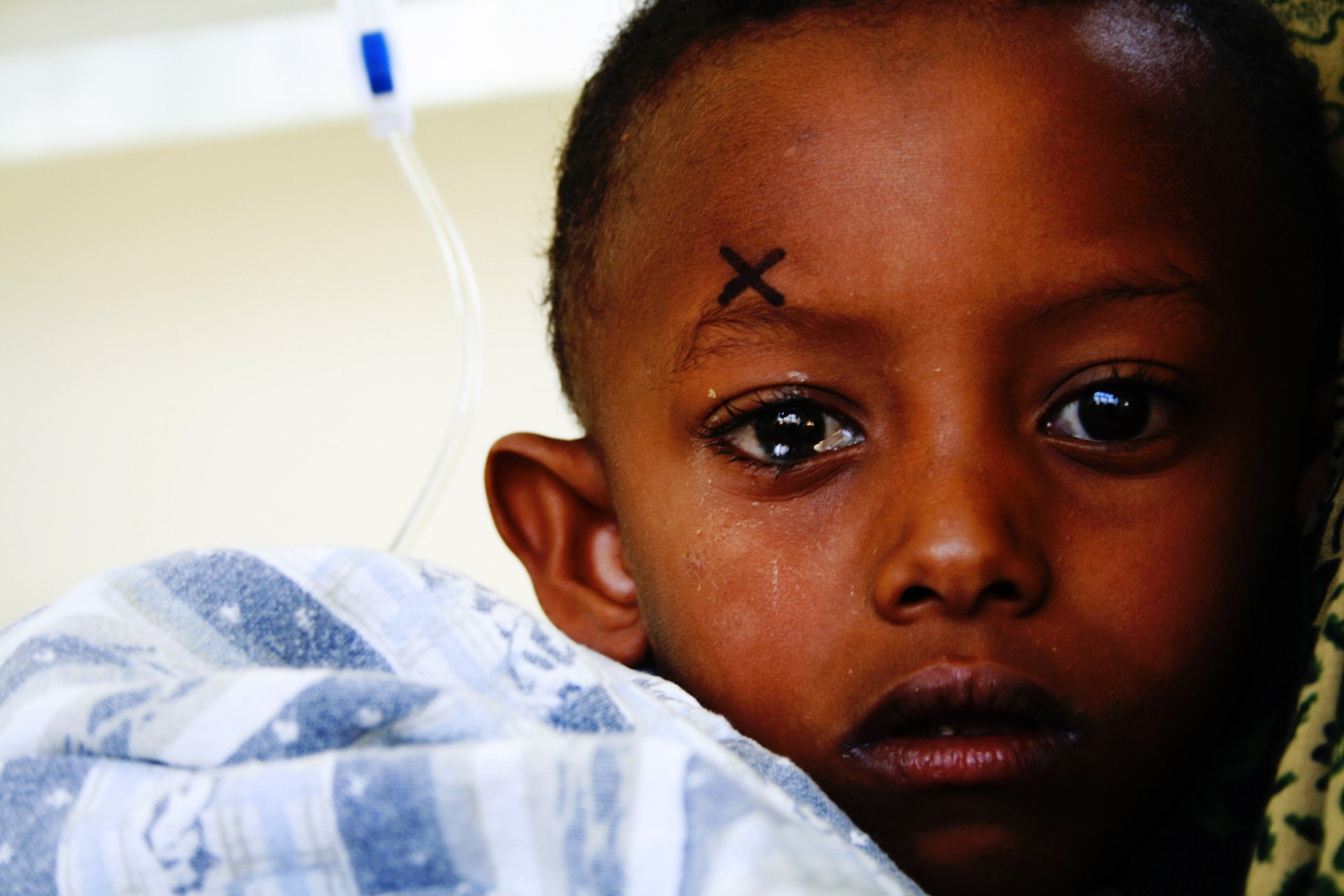 Celia's photo of a child patient in Ethiopia