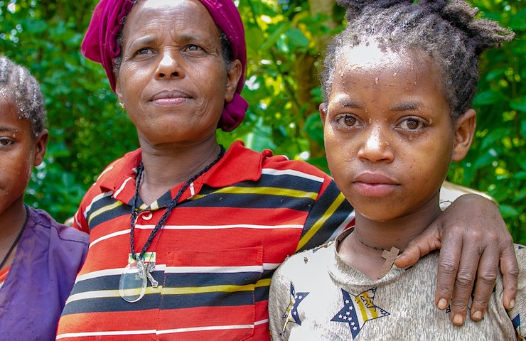 Blindness is a gender issue with 90 million women not having access to quality eye care