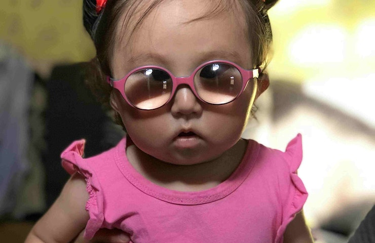Marla was born with congenital cataracts and treated by our local partner hospital in Mongolia