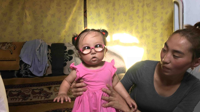 Dr. Murat saved the vision of baby Marla after performing cataracts surgery when she was 42 days old in Mongolia