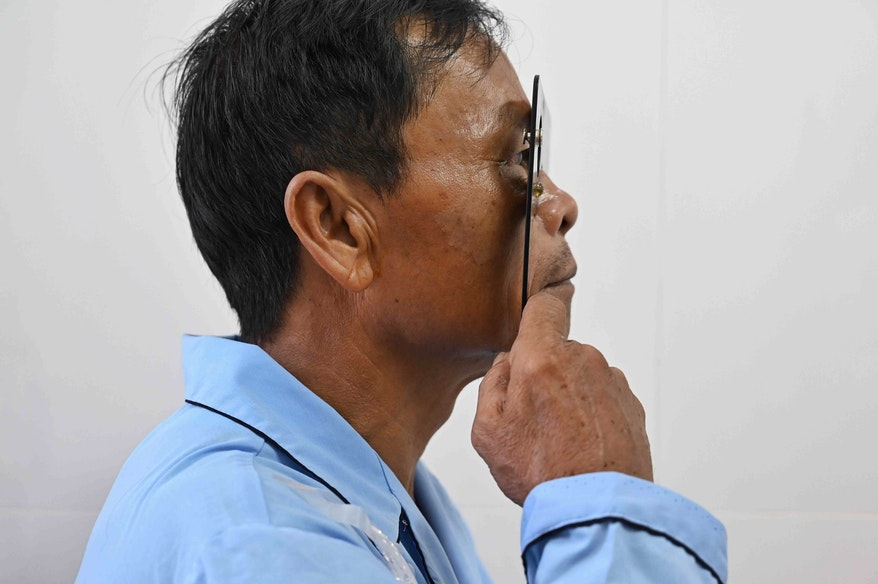 Cataract patient Dung screened after surgery at Hue Eye Hospital in Vietnam