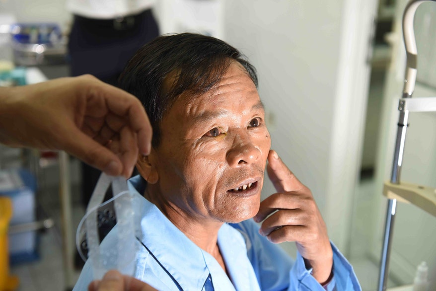 Dung's cataract removal surgery on Orbis Flying Eye Hospital in Vietnam was a success