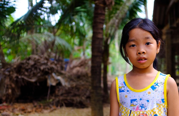 Phuong from a rural district in Vietnam has crossed-eye until strabismus surgery